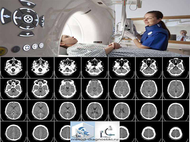 томография головы ряд снимков