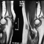 Как проводится и что показывает МРТ локтевого сустава?