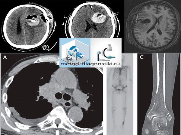 снимок при облучении на томографе