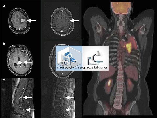 мозг и тело на МРТ