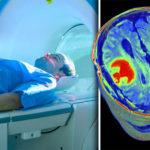МРТ при диагностике опухоли головного мозга – томография головы при подозрении на рак