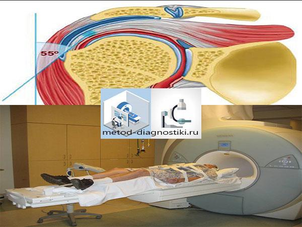 Изображение - Сколько по времени делается мрт плечевого сустава mrt-plechevogo-sustav