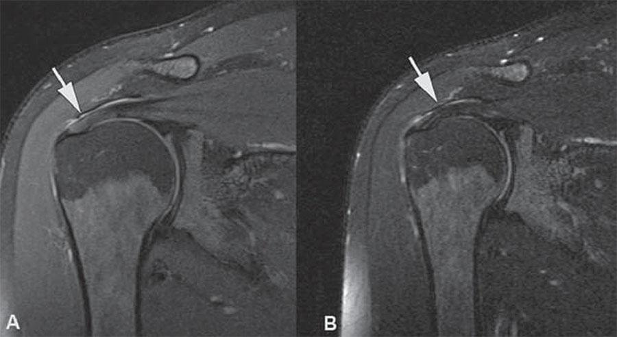 МРТ плечевого сустава: что показывает, как делают и что можно обнаружить на томографии?