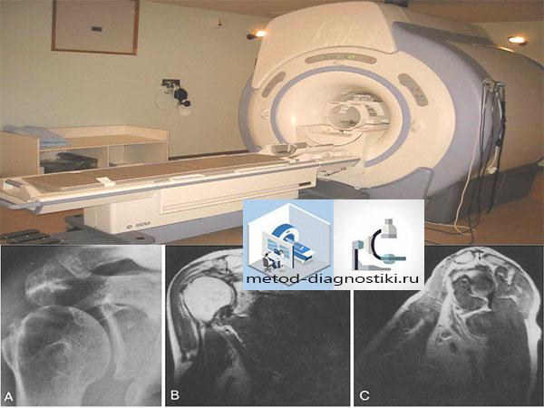 Изображение - Сколько по времени делается мрт плечевого сустава mrt-plechevogo-sustava