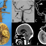 Что лучше пройти МРТ головного мозга или УЗИ сосудов головного мозга?